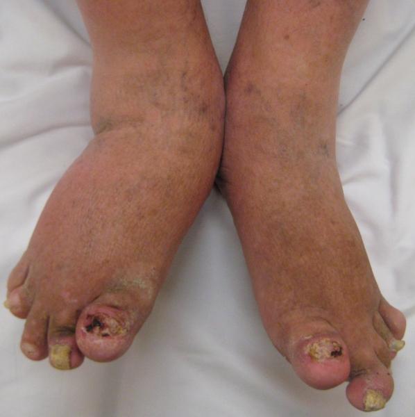 psoriatic_arthritis2010