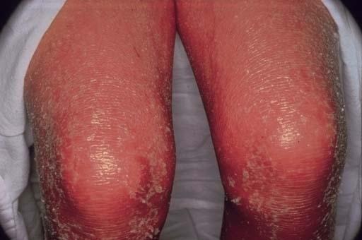erythrodermic-psoriasis1
