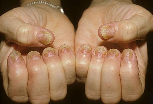 dermnet_rf_photo_of_psoriasis_on_fingernails