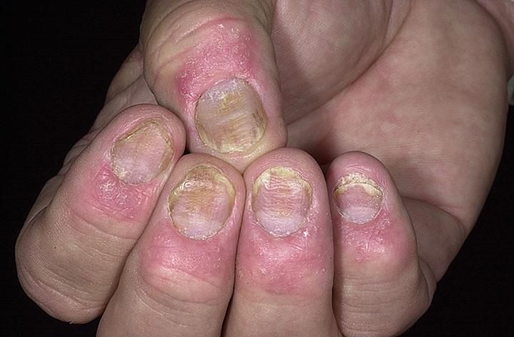 nail-4psoriasis