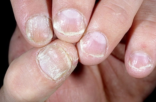 nail-psoriasis-pictures-21-508x332