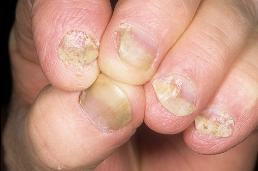 nail-psoriasis-pictures-56-508x337