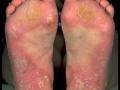 pustular-psoriasis