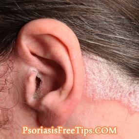 285x285_scalp_psoriasis_slide_5