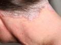 285x285_scalp_psoriasis_slide_3