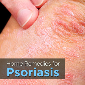 homeopathic psoriasis treatment skin