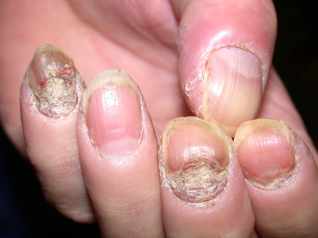 Nail psoriasis left hand