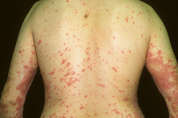 Pustular psoriasis on the whole back