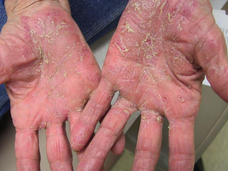 Pustular psoriasis on the fingers