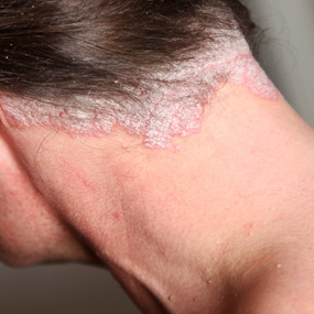 Scalp psoriasis on the neck and head