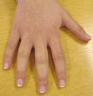 psoriasis arthritis symptoms