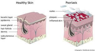 psoriasis skin destruction