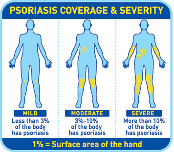 mild moderate severe psoriasis