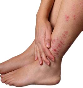 psoriasis feet photo