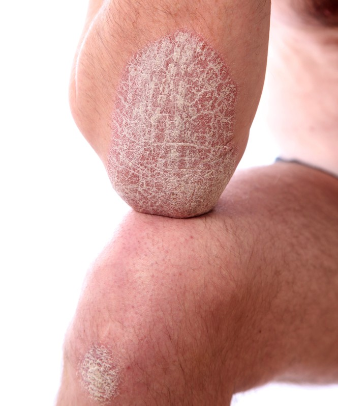 psoriasis treatment on the hands