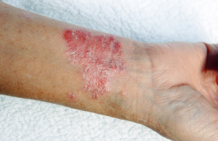Inverse Psoriasis arm