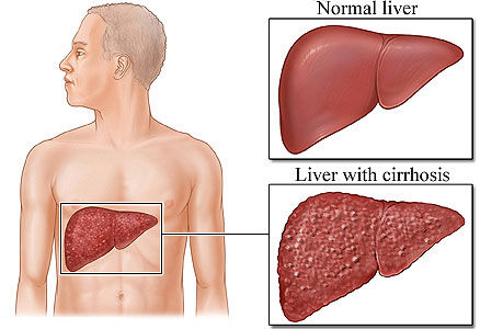 Cases of liver psoriasis photo