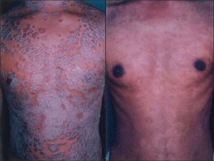 Phototherapy for psoriasis results