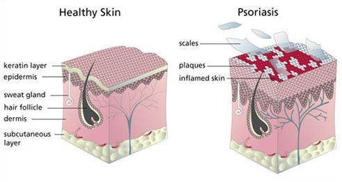 Psoriasis Contagious the explanation