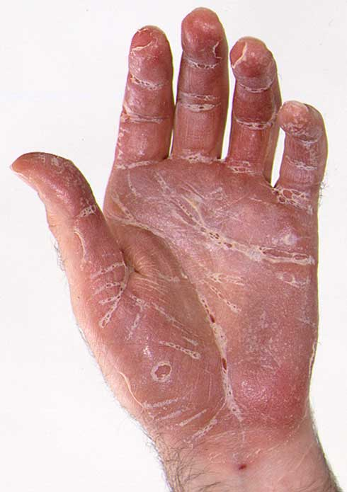 Psoriasis On The Feet And Hands