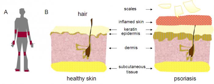 Psoriasis skin scheme