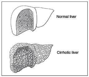 liver psoriasis cause problems