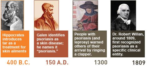 psoriasis through the history