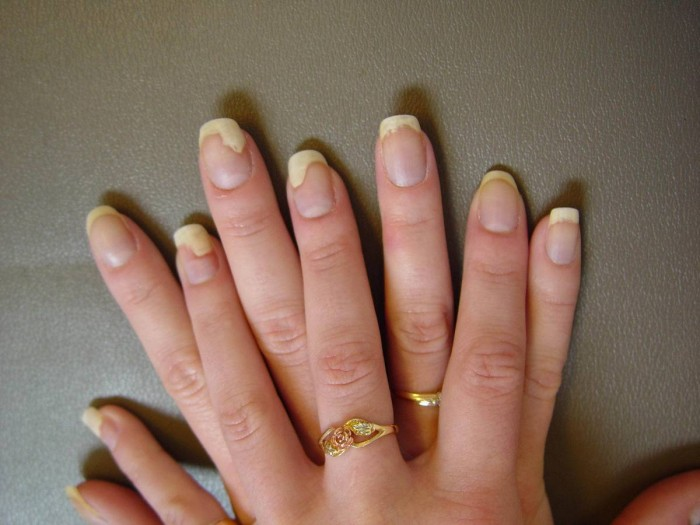 fingernail nail psoriasis treatment