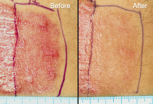 psoriasis laser treatment