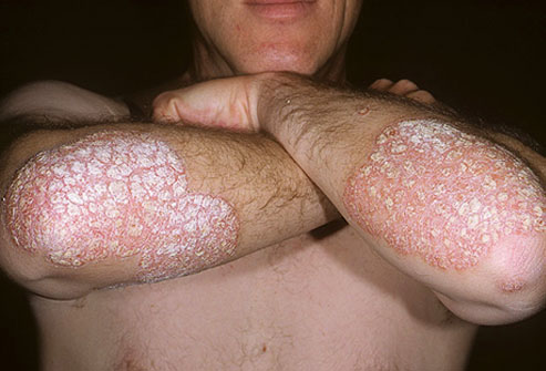 plaque psoriasis treatment options