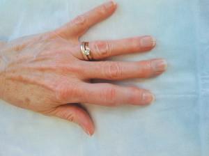 psoriasis arthritis treatment on the fingers