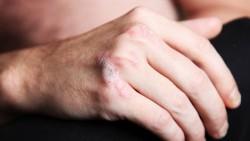 psoriatic arthritis arm